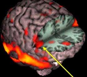Neuroni a specchio biodanzando - Neuroni specchio e autismo ...